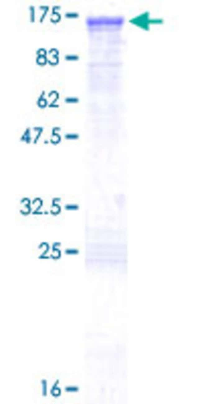 AbnovaHuman ABR Full-length ORF (NP_068781.2, 1 a.a. - 859 a.a.) Recombinant