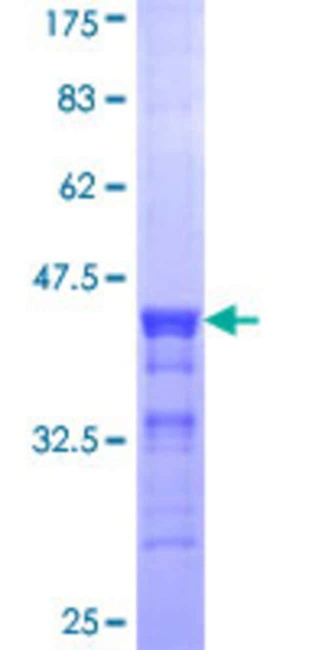 AbnovaHuman ACAA1 Partial ORF (NP_001598, 217 a.a. - 315 a.a.) Recombinant