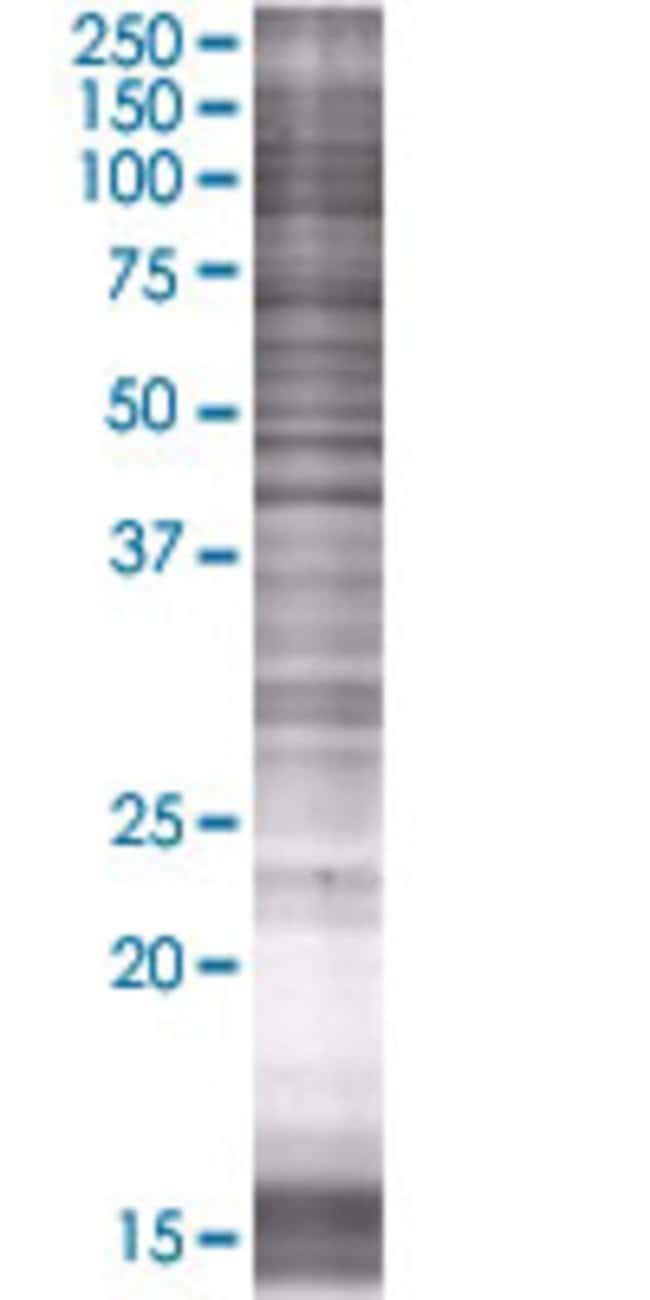 AbnovaACAA1 293T Cell Transient Overexpression Lysate (Denatured) (T01)