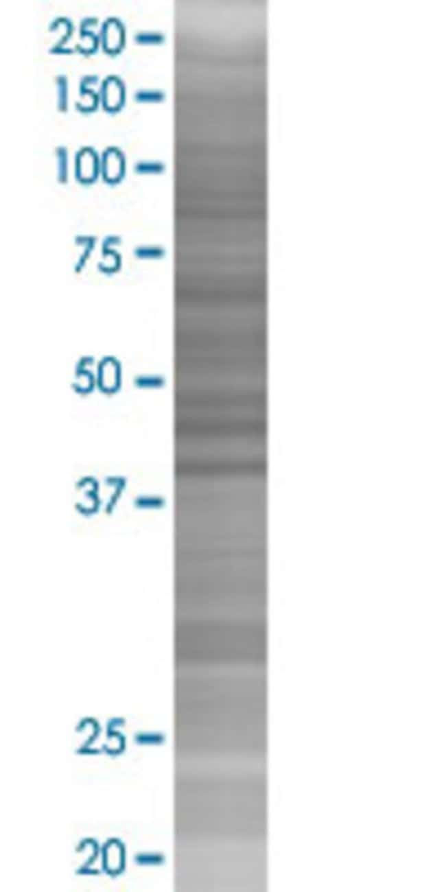 AbnovaACAA1 293T Cell Transient Overexpression Lysate (Denatured) (T02)