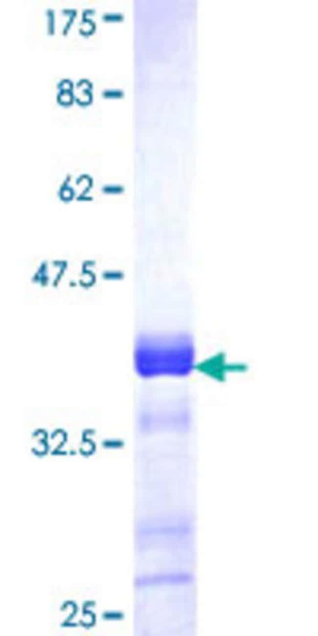 AbnovaHuman ACACB Partial ORF (NP_001084, 22 a.a. - 120 a.a.) Recombinant