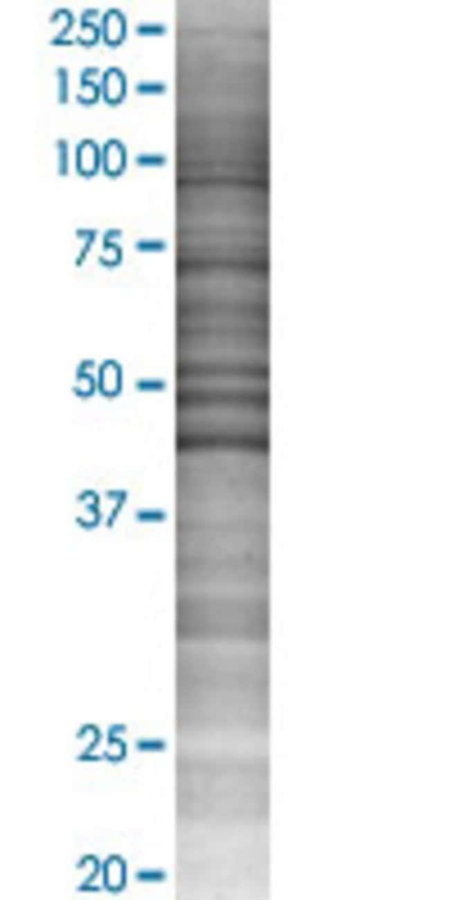 AbnovaACADM 293T Cell Transient Overexpression Lysate (Denatured) 100μL:Protein