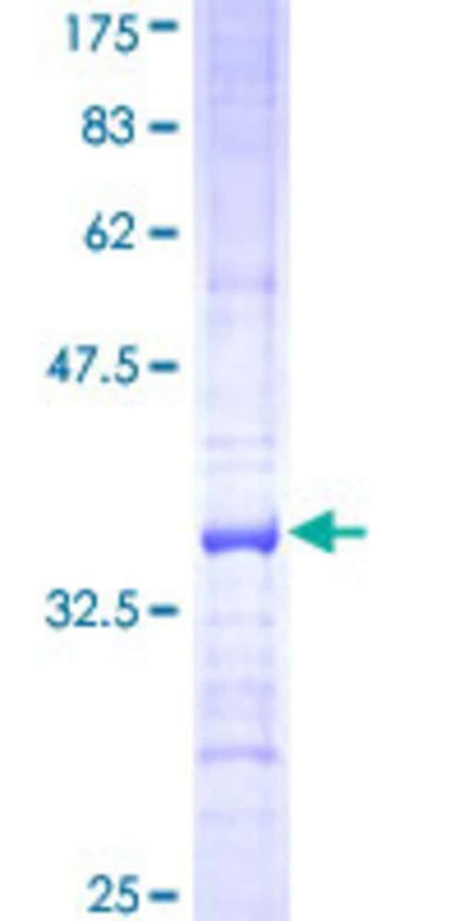 Abnova™Human ACADVL Partial ORF (NP_000009, 345 a.a. - 434 a.a.) Recombinant Protein with GST-tag at N-terminal 10μg Abnova™Human ACADVL Partial ORF (NP_000009, 345 a.a. - 434 a.a.) Recombinant Protein with GST-tag at N-terminal