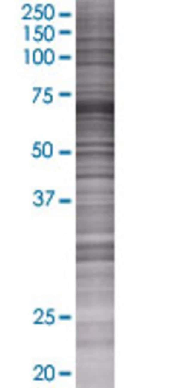 AbnovaACADVL 293T Cell Transient Overexpression Lysate (Denatured) 100μL:Protein