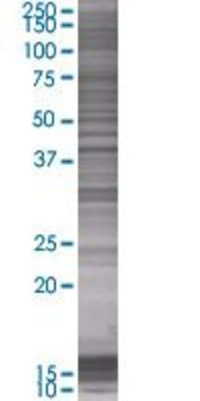 AbnovaACAT2 293T Cell Transient Overexpression Lysate (Denatured) (T01)
