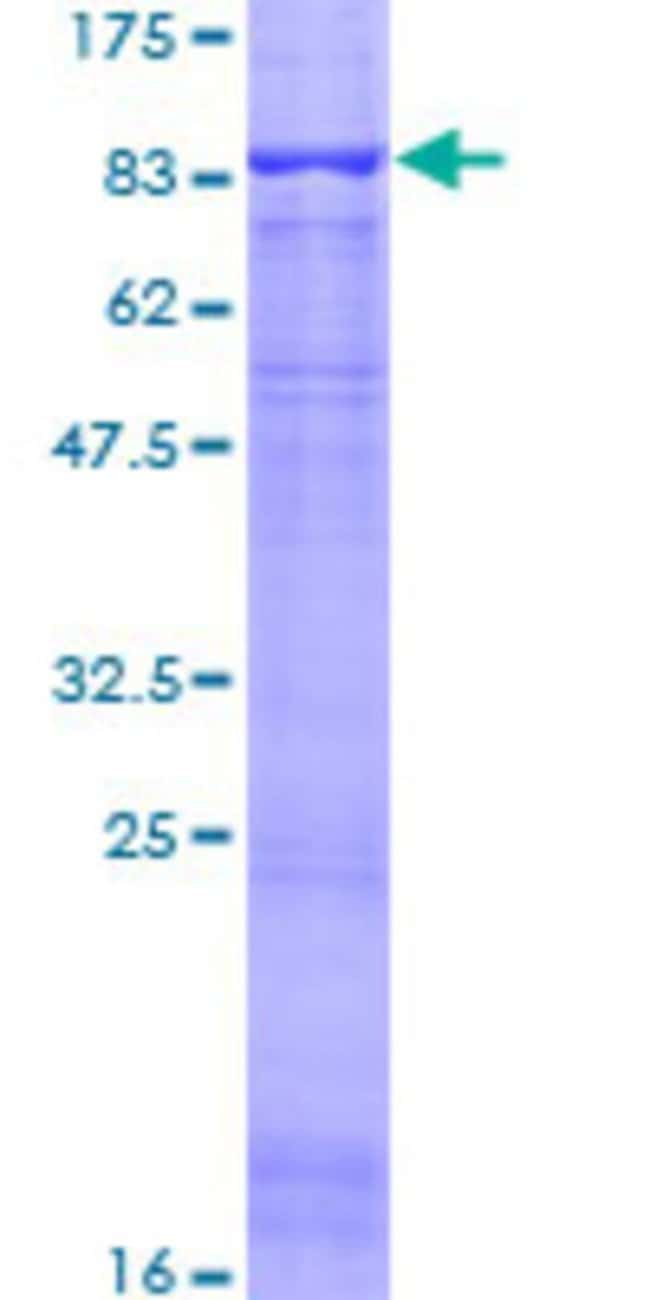 Abnova™Human ACCN2 Full-length ORF (NP_001086.2, 1 a.a. - 528 a.a.) Recombinant Protein with GST-tag at N-terminal 25μg Abnova™Human ACCN2 Full-length ORF (NP_001086.2, 1 a.a. - 528 a.a.) Recombinant Protein with GST-tag at N-terminal