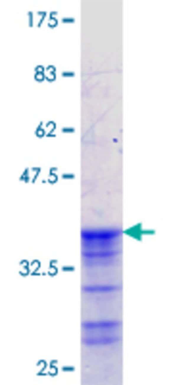 AbnovaHuman ACCN2 Partial ORF (NP_064423.2, 96 a.a. - 185 a.a.) Recombinant