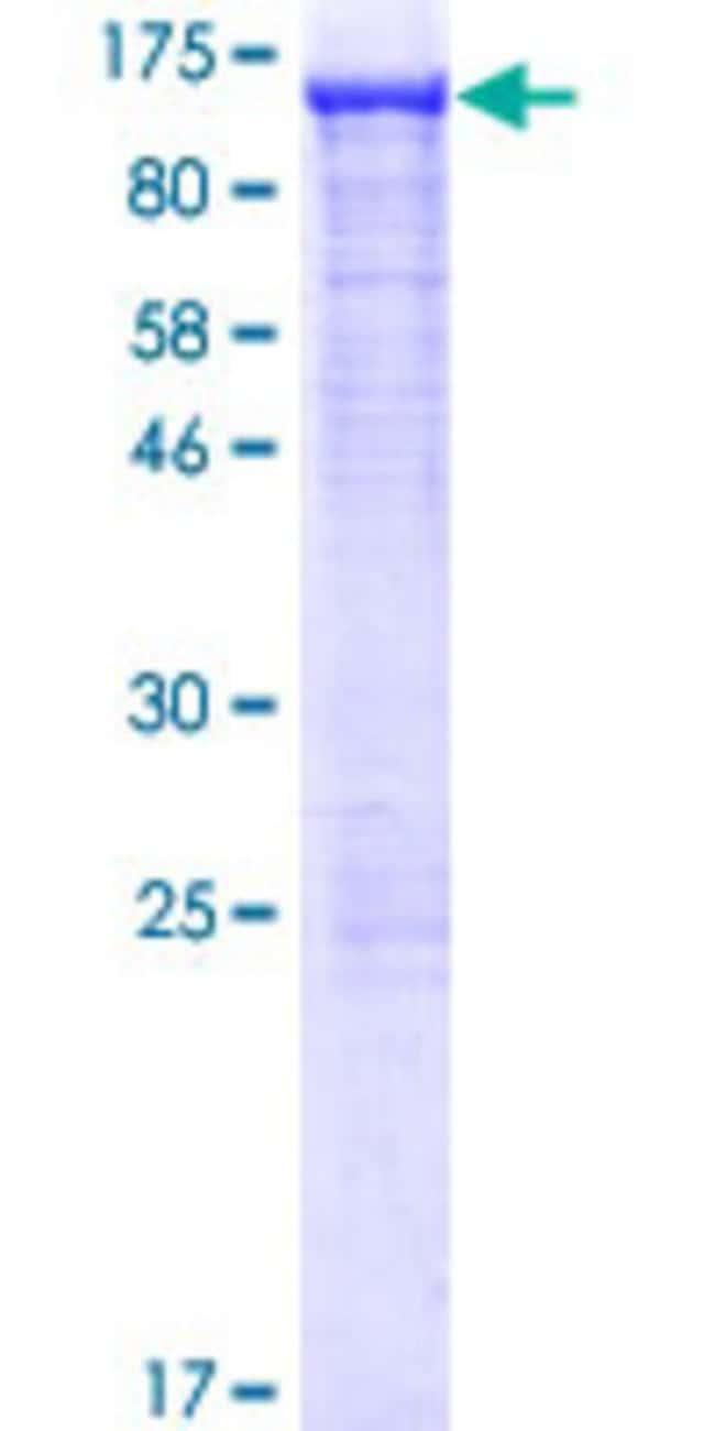 AbnovaHuman ACO1 Full-length ORF (NP_002188.1, 1 a.a. - 889 a.a.) Recombinant