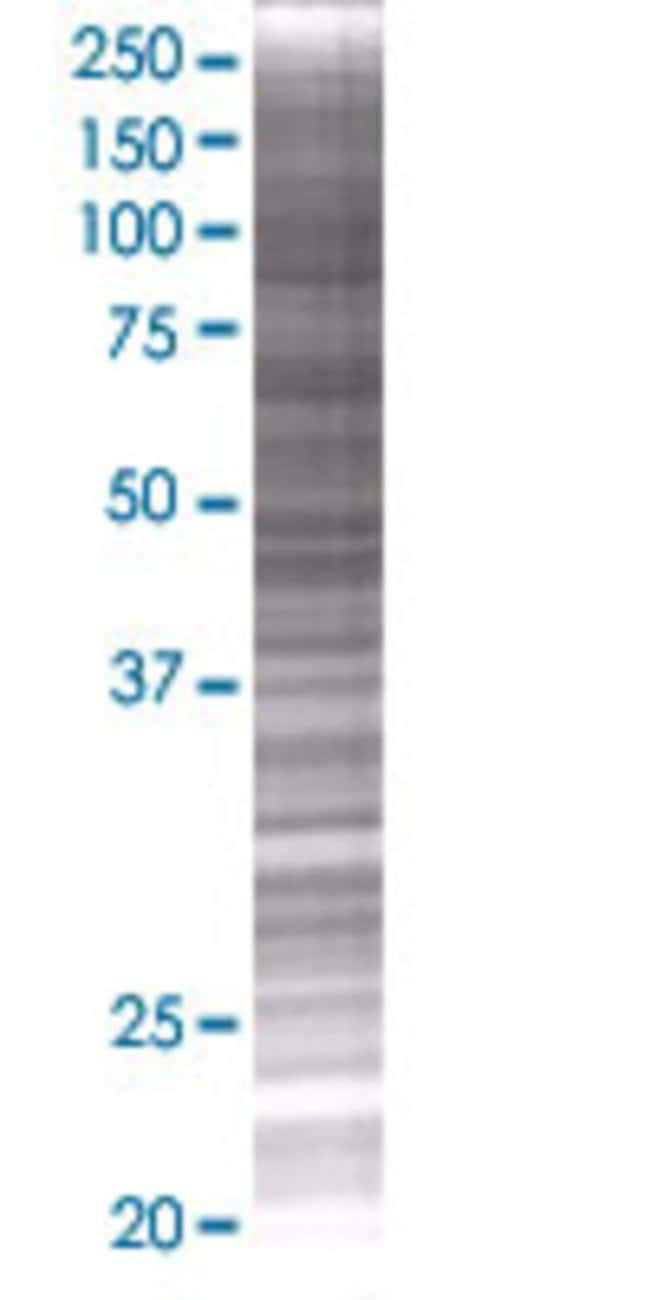 AbnovaACO1 293T Cell Transient Overexpression Lysate (Denatured) 100μL:Protein