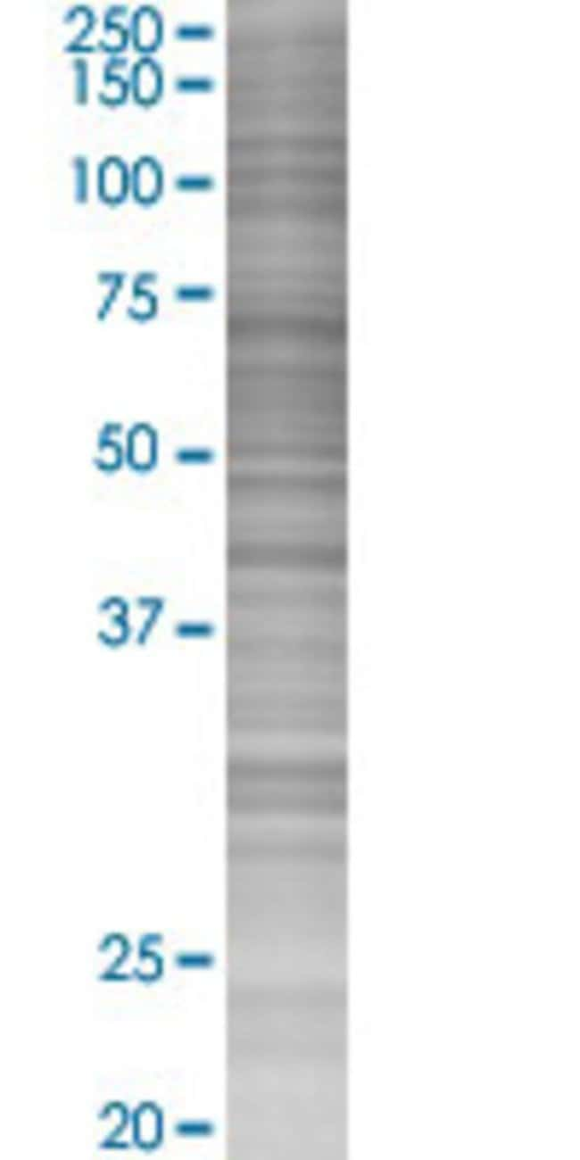 AbnovaACP2 293T Cell Transient Overexpression Lysate (Denatured) 100μL:Protein