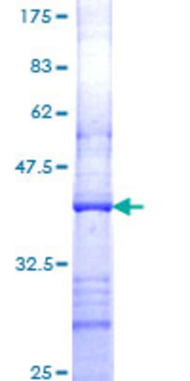 AbnovaHuman ACP5 Partial ORF (NP_001602, 221 a.a. - 325 a.a.) Recombinant