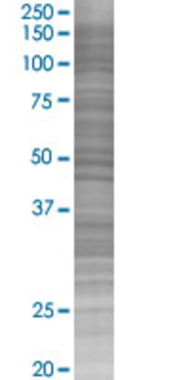 AbnovaACP5 293T Cell Transient Overexpression Lysate (Denatured) (T02)