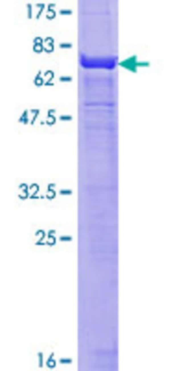 AbnovaHuman ACTA2 Full-length ORF (AAH17554.1, 1 a.a. - 377 a.a.) Recombinant
