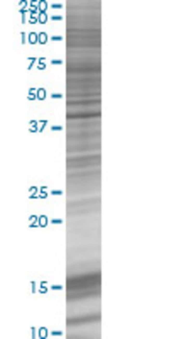 AbnovaACTG2 293T Cell Transient Overexpression Lysate (Denatured) 100μL:Protein