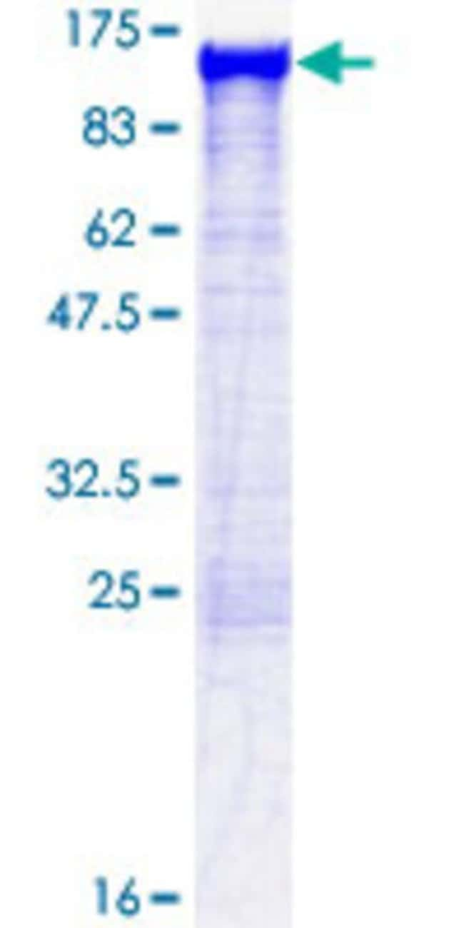 Abnova™Human ACTN1 Full-length ORF (NP_001093.1, 1 a.a. - 892 a.a.) Recombinant Protein with GST-tag at N-terminal 10μg Abnova™Human ACTN1 Full-length ORF (NP_001093.1, 1 a.a. - 892 a.a.) Recombinant Protein with GST-tag at N-terminal