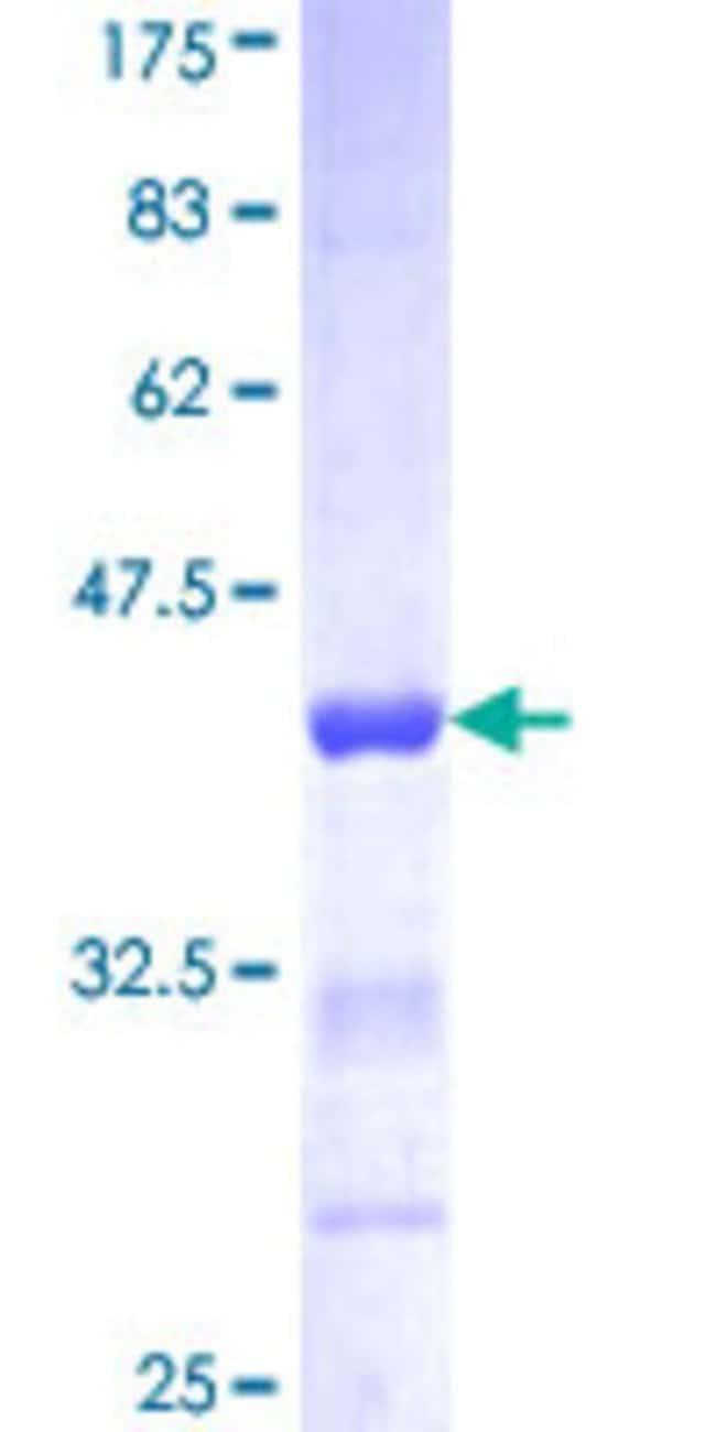 AbnovaHuman ACTN1 Partial ORF (NP_001093, 543 a.a. - 639 a.a.) Recombinant