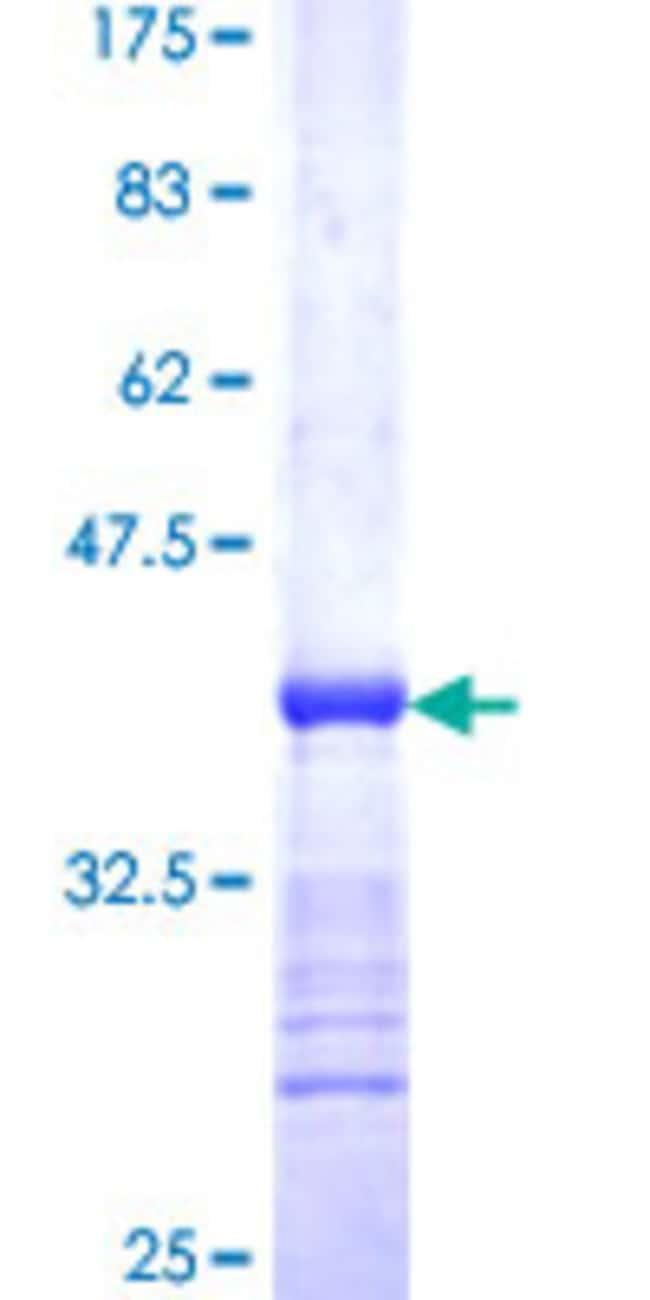 AbnovaHuman ACVR1B Partial ORF (AAH00254, 24 a.a. - 126 a.a.) Recombinant