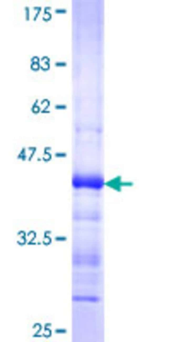AbnovaHuman ACVR2A Partial ORF (AAH67418.1, 24 a.a. - 133 a.a.) Recombinant