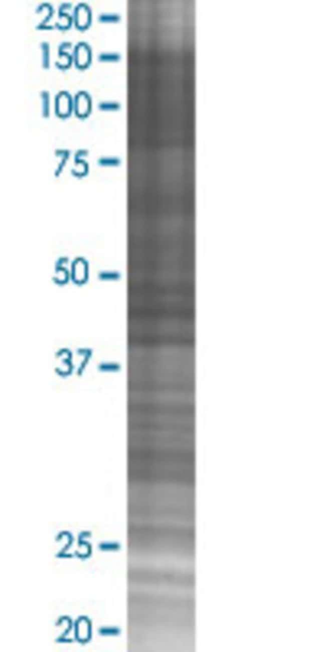 AbnovaACVR2B 293T Cell Transient Overexpression Lysate (Denatured) 100μL:Protein
