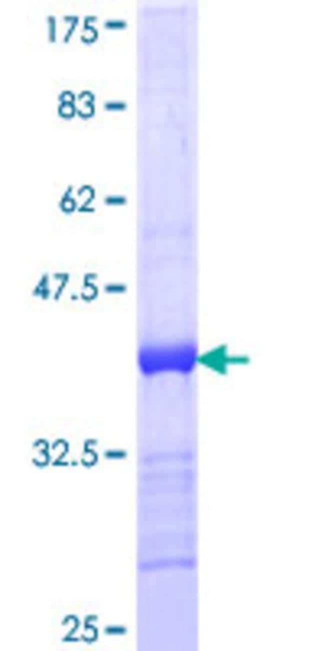 AbnovaHuman ACVRL1 Partial ORF (AAH42637, 22 a.a. - 119 a.a.) Recombinant