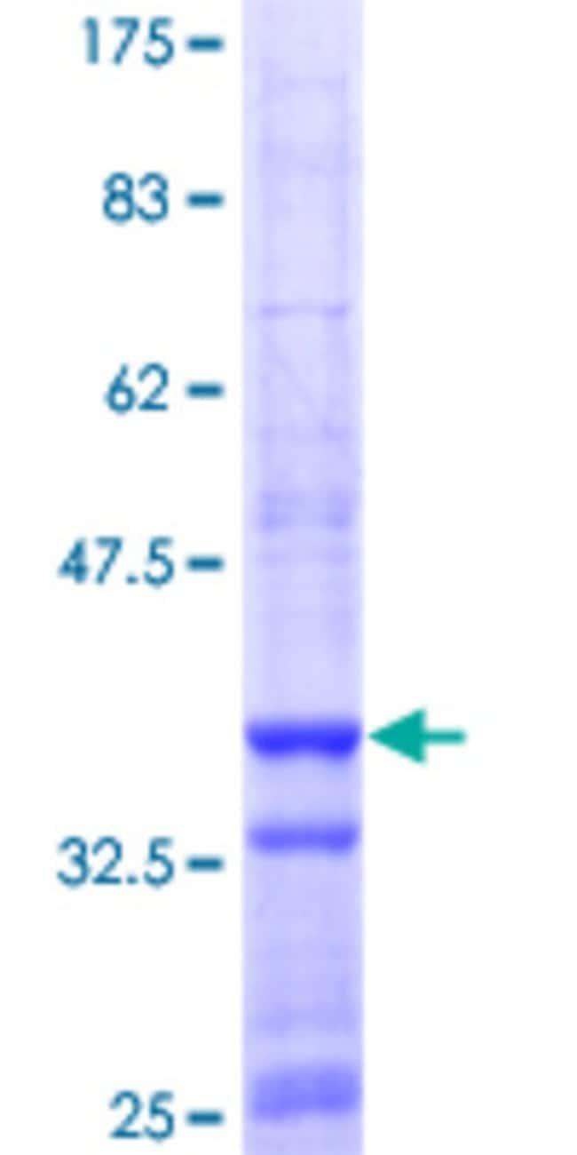 AbnovaHuman ADAR Partial ORF (NP_001102.2, 2 a.a. - 110 a.a.) Recombinant