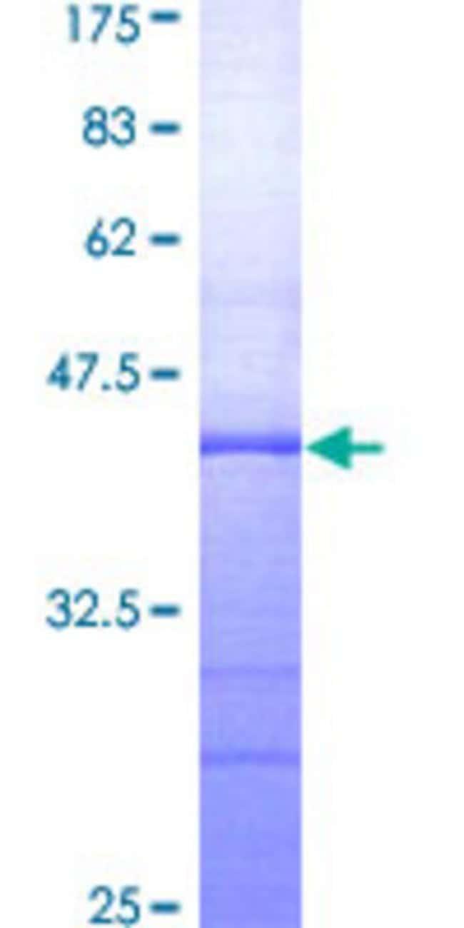 AbnovaHuman ADARB1 Partial ORF (AAH65545, 592 a.a. - 701 a.a.) Recombinant