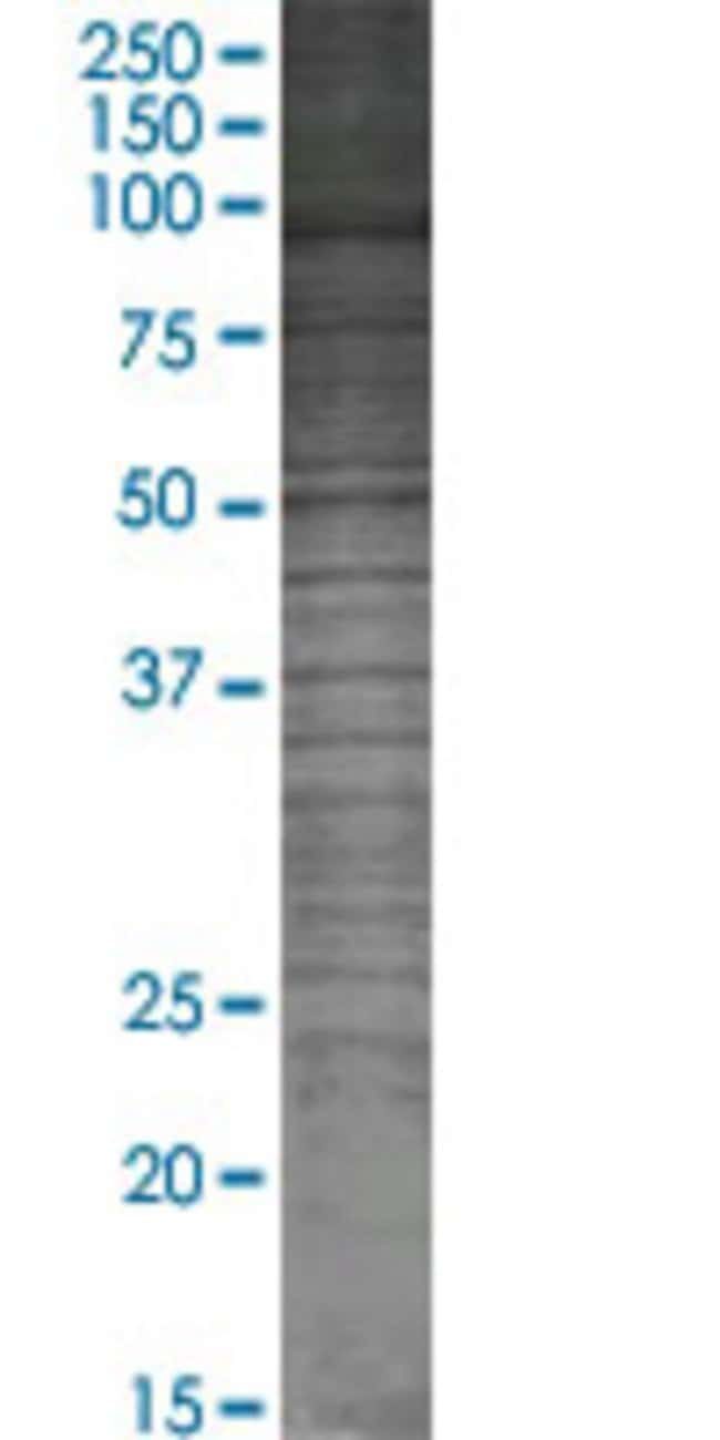 AbnovaADARB1 293T Cell Transient Overexpression Lysate (Denatured) (T02)