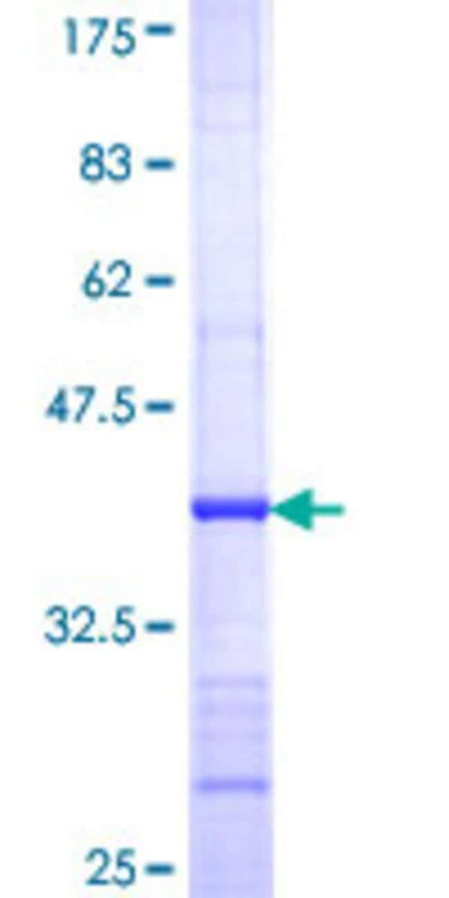AbnovaHuman ADCY3 Partial ORF (NP_004027, 1035 a.a. - 1144 a.a.) Recombinant