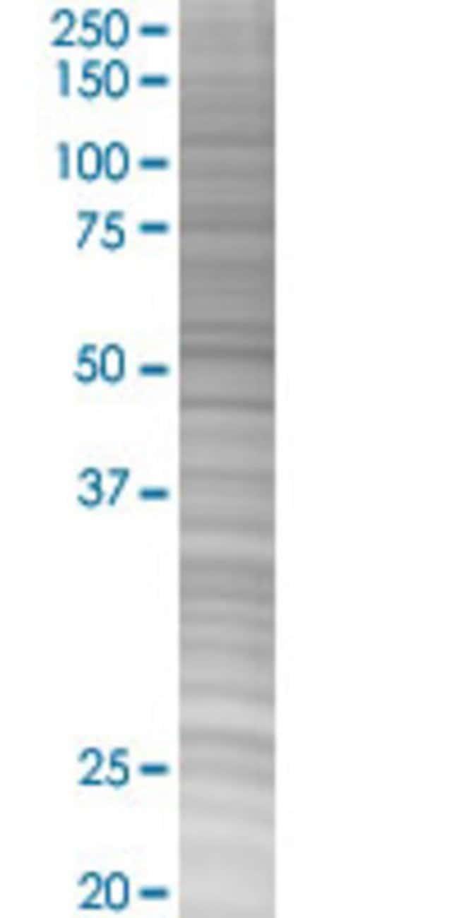 AbnovaADD1 293T Cell Transient Overexpression Lysate (Denatured) 100μL:Protein