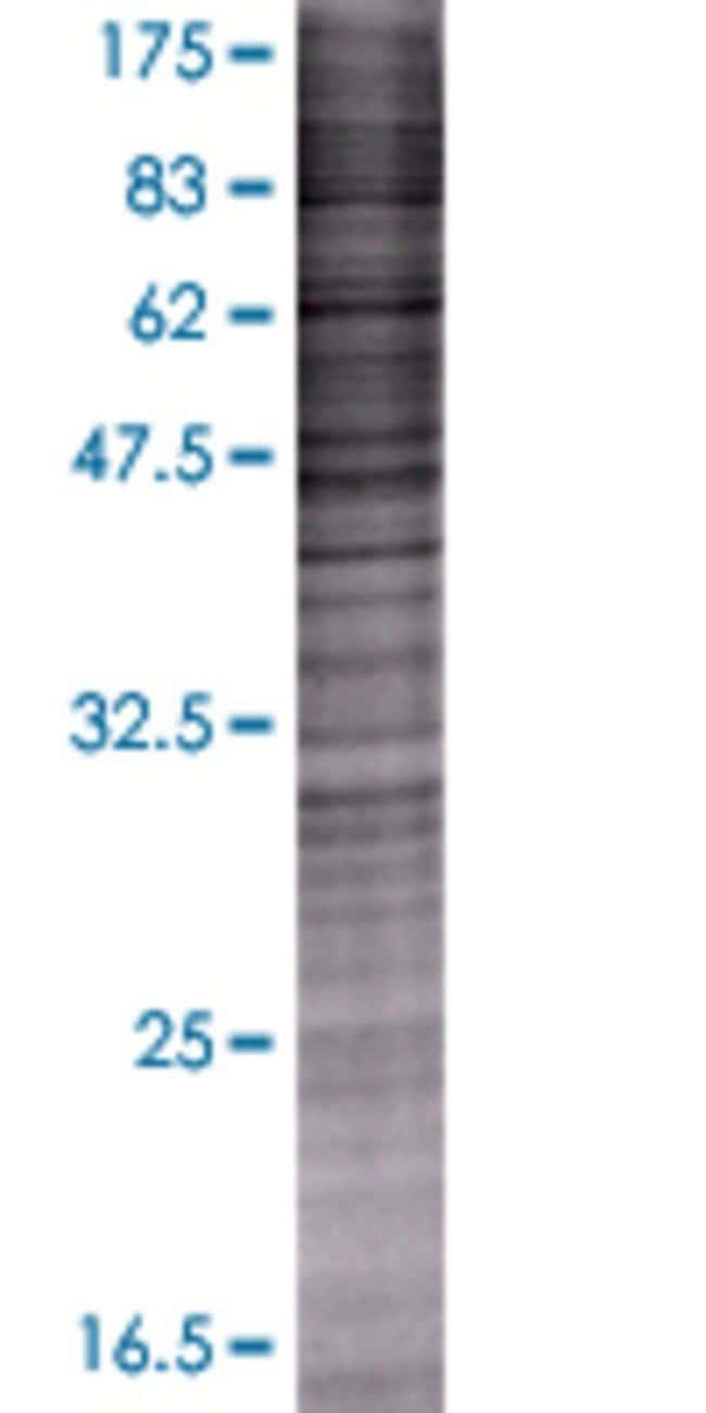 AbnovaADFP 293T Cell Transient Overexpression Lysate (Denatured) 100μL:Protein
