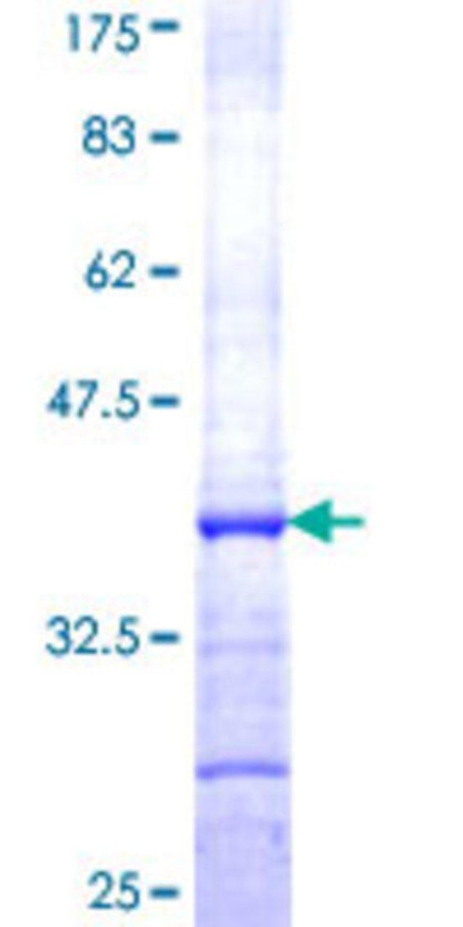 AbnovaHuman ADH1A Partial ORF (NP_000658, 298 a.a. - 375 a.a.) Recombinant