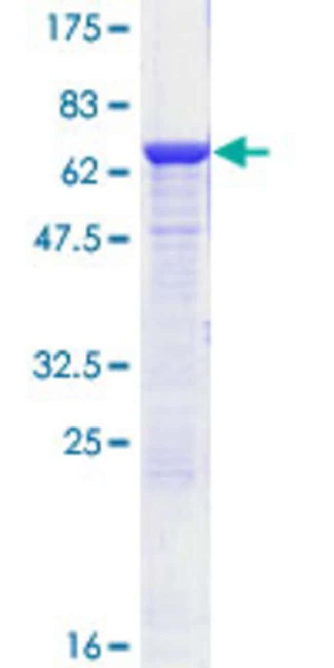 AbnovaHuman ADH1C Full-length ORF (NP_000660.1, 1 a.a. - 375 a.a.) Recombinant