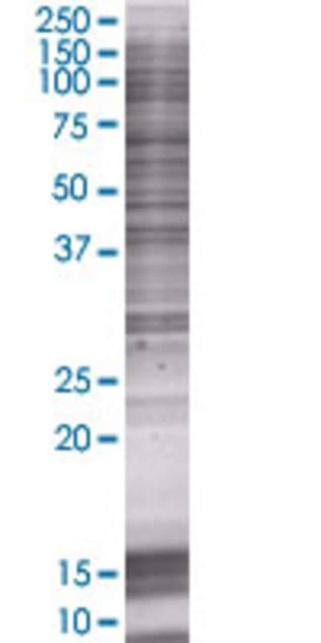 AbnovaADH1C 293T Cell Transient Overexpression Lysate (Denatured) 100μL:Protein
