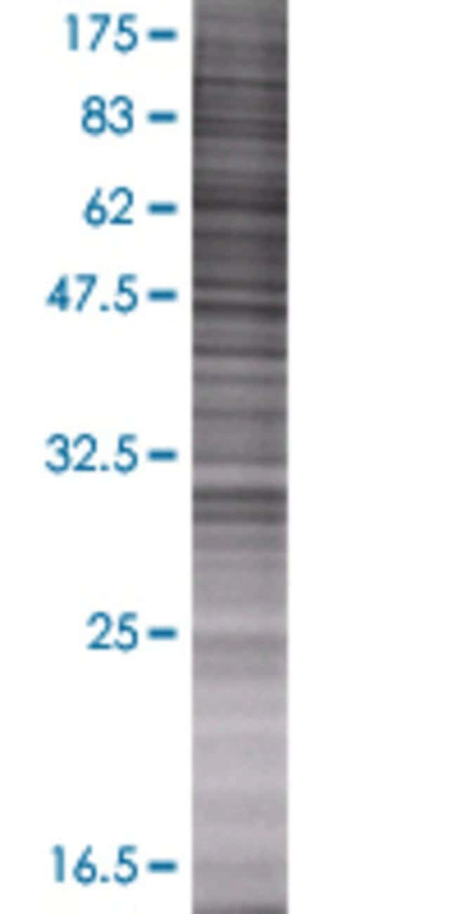 AbnovaADH5 293T Cell Transient Overexpression Lysate (Denatured) (T01)