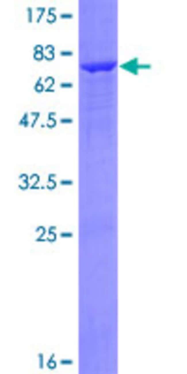 AbnovaHuman ADH7 Full-length ORF (NP_000664.2, 1 a.a. - 386 a.a.) Recombinant