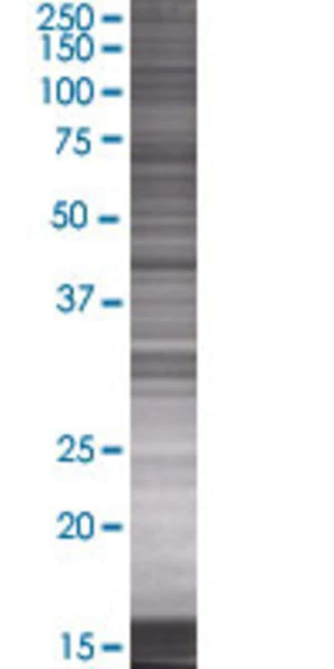 AbnovaADH7 293T Cell Transient Overexpression Lysate (Denatured) (T01)
