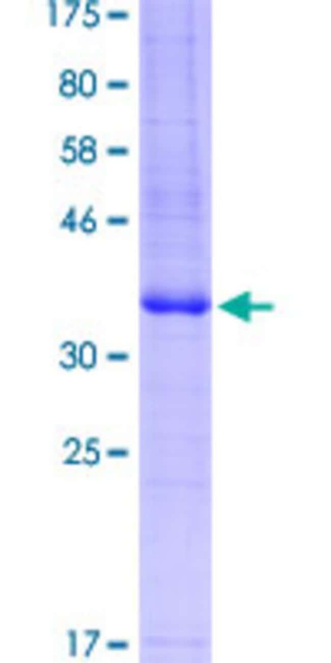 AbnovaHuman ADORA2A Partial ORF (NP_000666.2, 147 a.a. - 267 a.a.) Recombinant