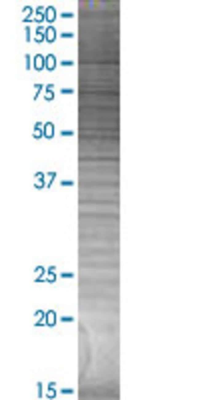AbnovaADORA2A 293T Cell Transient Overexpression Lysate (Denatured) 100μL:Protein