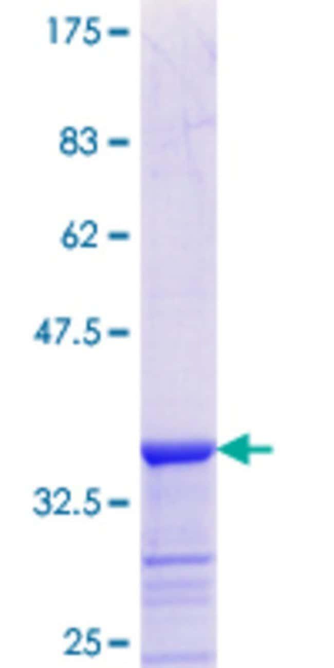 AbnovaHuman ADPRH Partial ORF (NP_001116.1, 23 a.a. - 121 a.a.) Recombinant