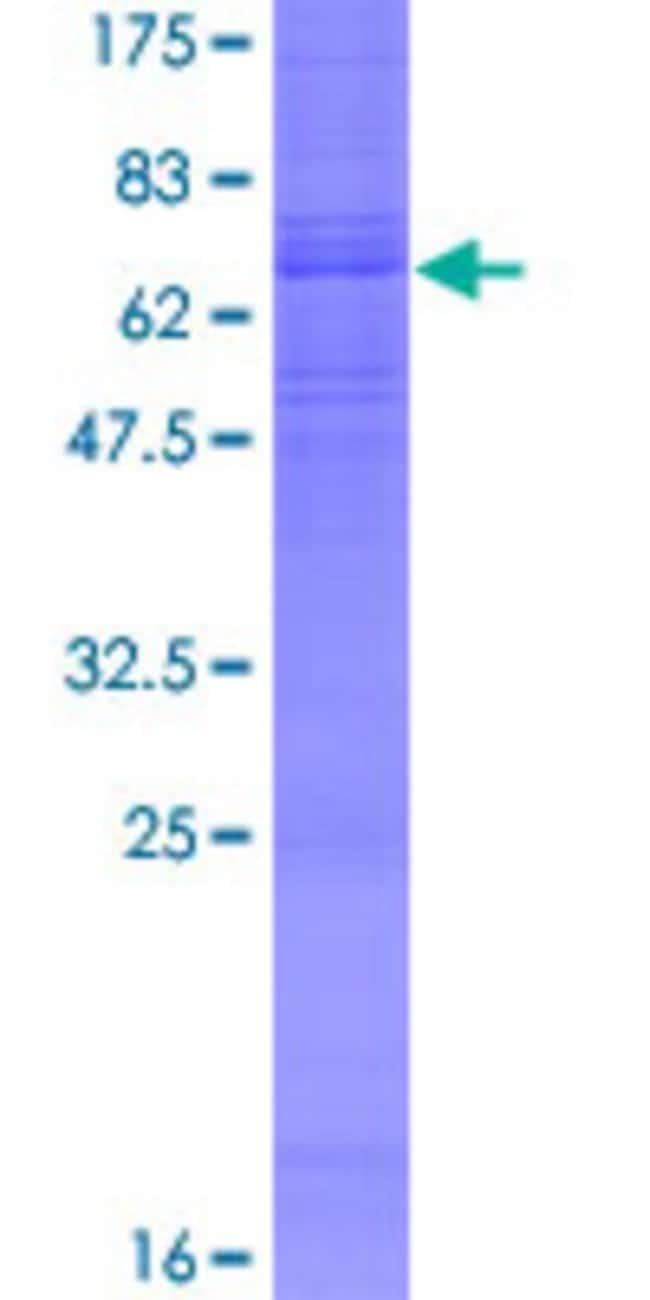 AbnovaHuman ADRB3 Full-length ORF (NP_000016.1, 1 a.a. - 408 a.a.) Recombinant