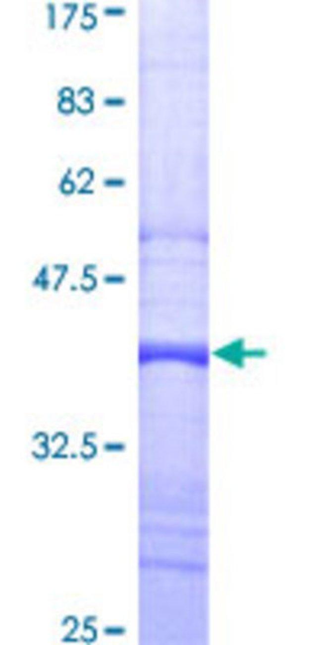 AbnovaHuman ADRBK2 Partial ORF (AAH36797, 48 a.a. - 147 a.a.) Recombinant