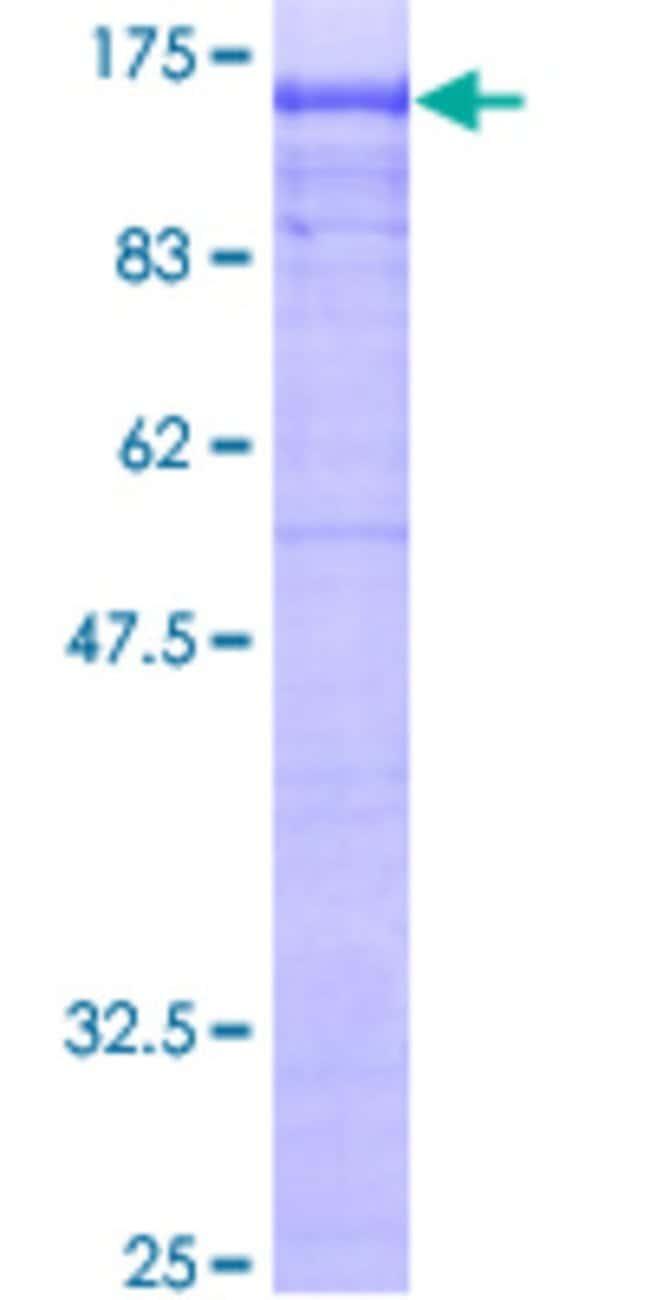 AbnovaHuman AP2B1 Full-length ORF (AAH06201, 1 a.a. - 951 a.a.) Recombinant