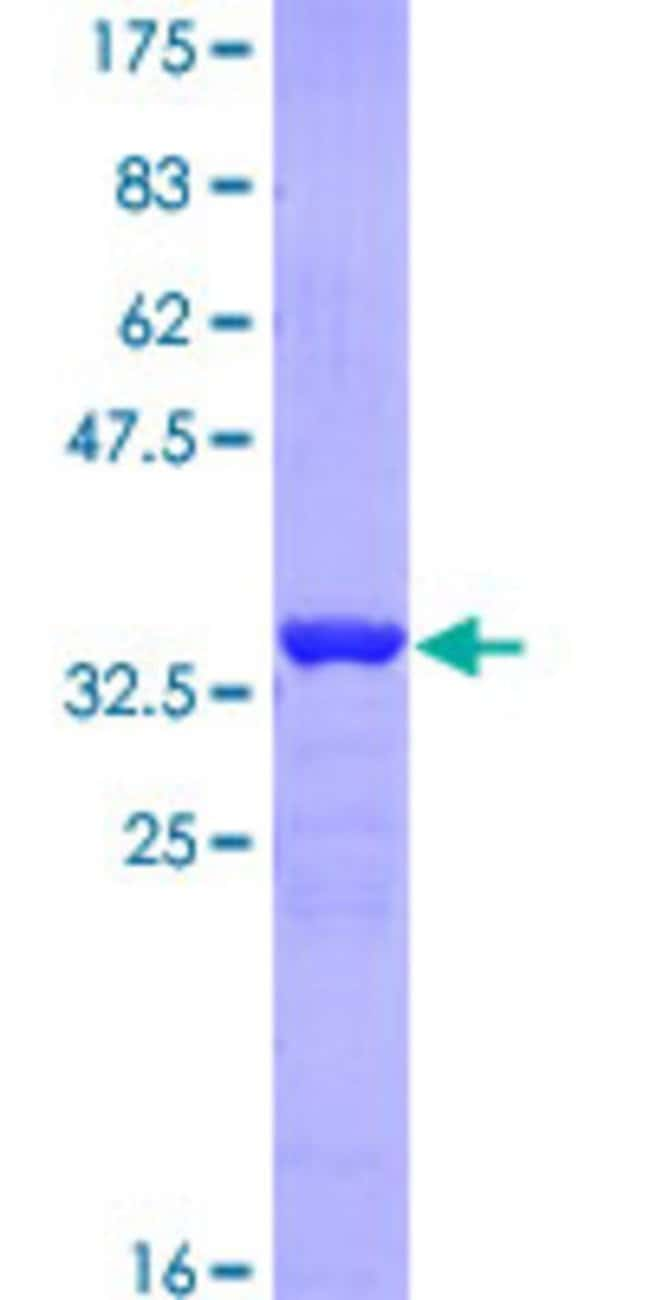 Abnova™ Human AP2B1 Partial ORF (NP_001273.1, 585 a.a. - 651 a.a.) Recombinant Protein with GST-tag at N-terminal 25μg Abnova™ Human AP2B1 Partial ORF (NP_001273.1, 585 a.a. - 651 a.a.) Recombinant Protein with GST-tag at N-terminal