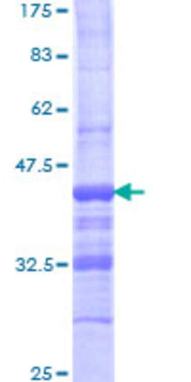 AbnovaHuman AEBP1 Partial ORF (NP_001120, 912 a.a. - 1013 a.a.) Recombinant