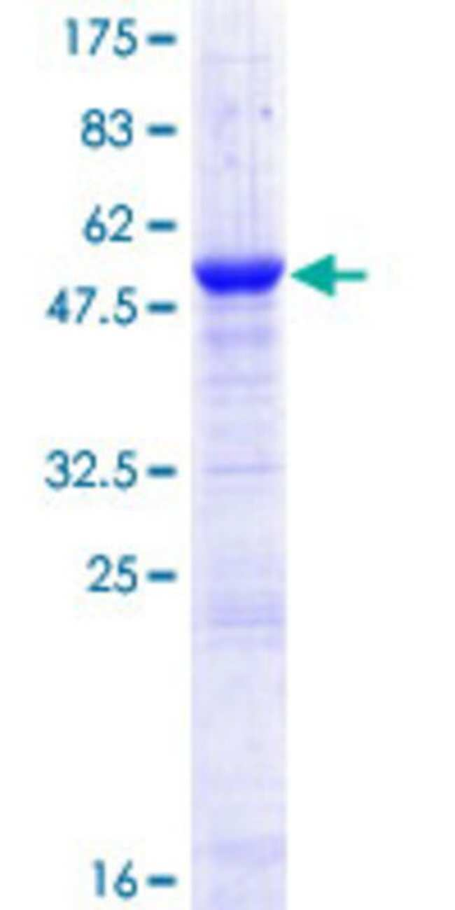 Abnova™Human CRISP1 Full-length ORF (NP_001122.2, 1 a.a. - 249 a.a.) Recombinant Protein with GST-tag at N-terminal 25μg Abnova™Human CRISP1 Full-length ORF (NP_001122.2, 1 a.a. - 249 a.a.) Recombinant Protein with GST-tag at N-terminal