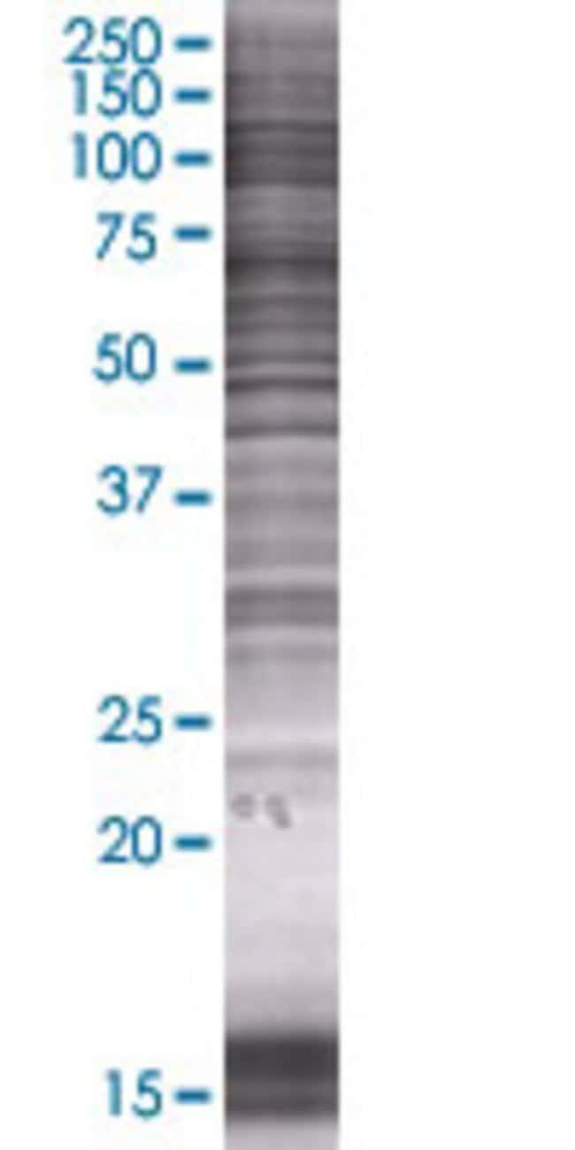 AbnovaAFM 293T Cell Transient Overexpression Lysate (Denatured) 100μL:Protein