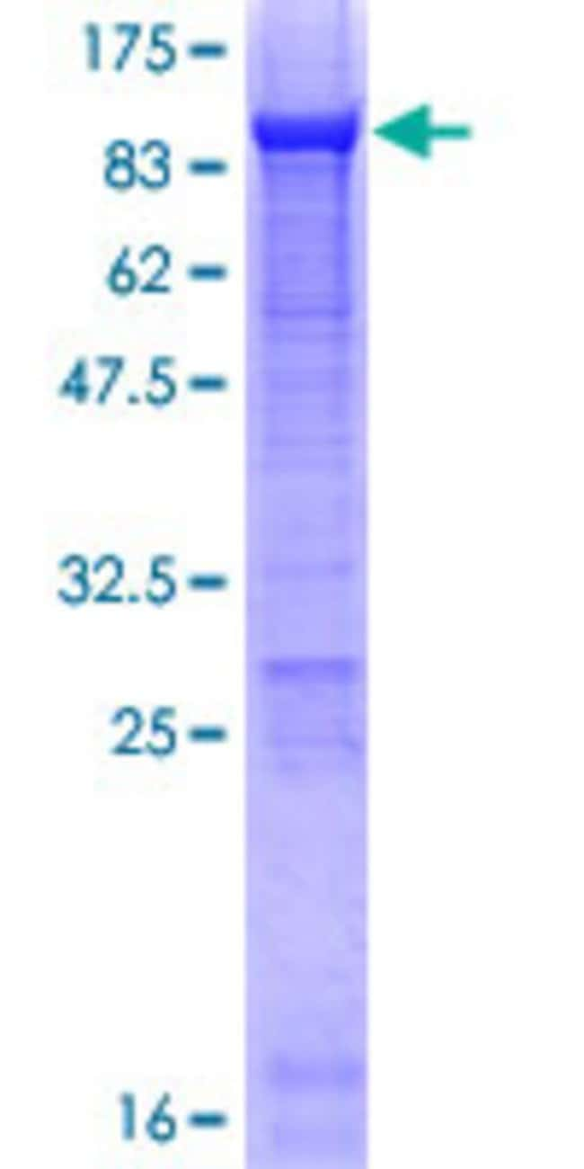 Abnova™Human AFP Full-length ORF (AAH27881.1, 1 a.a. - 609 a.a.) Recombinant Protein with GST-tag at N-terminal 25μg Abnova™Human AFP Full-length ORF (AAH27881.1, 1 a.a. - 609 a.a.) Recombinant Protein with GST-tag at N-terminal