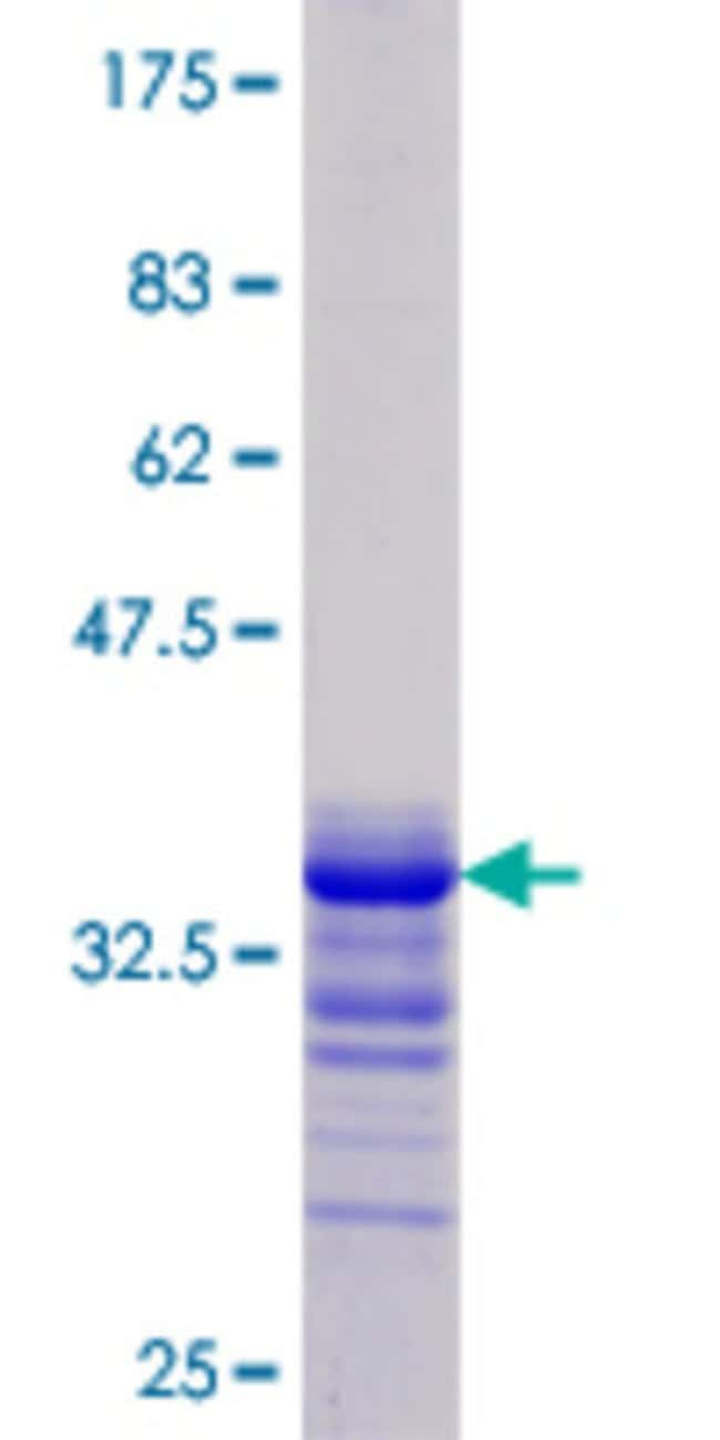 Abnova™ Human JAG1 Partial ORF (NP_000205.1, 37 a.a. - 119 a.a.) Recombinant Protein with GST-tag at N-terminal 25μg Abnova™ Human JAG1 Partial ORF (NP_000205.1, 37 a.a. - 119 a.a.) Recombinant Protein with GST-tag at N-terminal