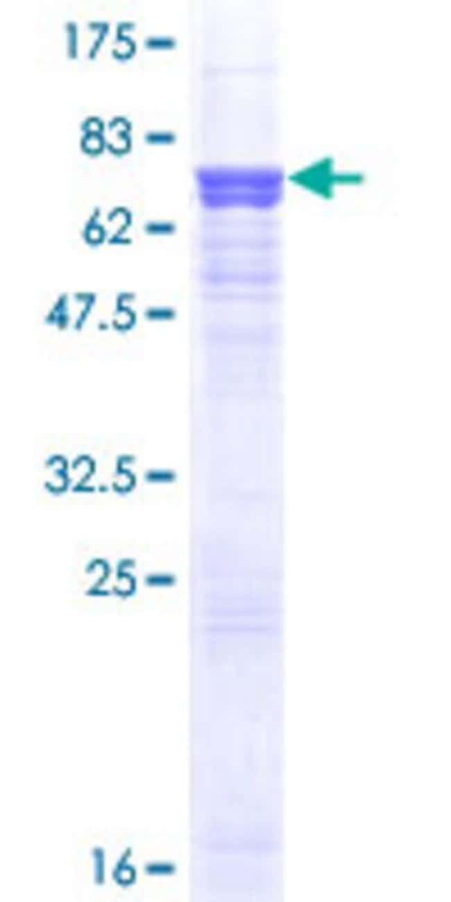 Abnova™ Human AGT Full-length ORF (AAH11519, 1 a.a. - 485 a.a.) Recombinant Protein with GST-tag at N-terminal 25μg Abnova™ Human AGT Full-length ORF (AAH11519, 1 a.a. - 485 a.a.) Recombinant Protein with GST-tag at N-terminal