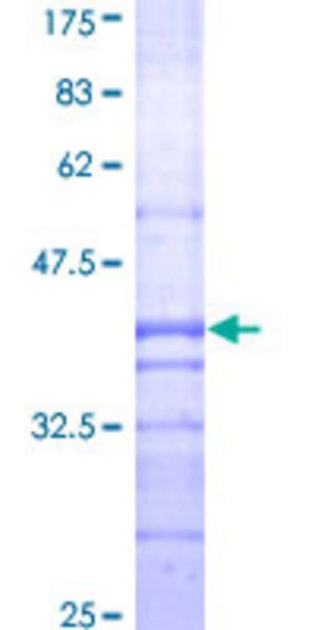 Abnova™ Human AGT Partial ORF (AAH11519, 376 a.a. - 485 a.a.) Recombinant Protein with GST-tag at N-terminal 10μg Abnova™ Human AGT Partial ORF (AAH11519, 376 a.a. - 485 a.a.) Recombinant Protein with GST-tag at N-terminal